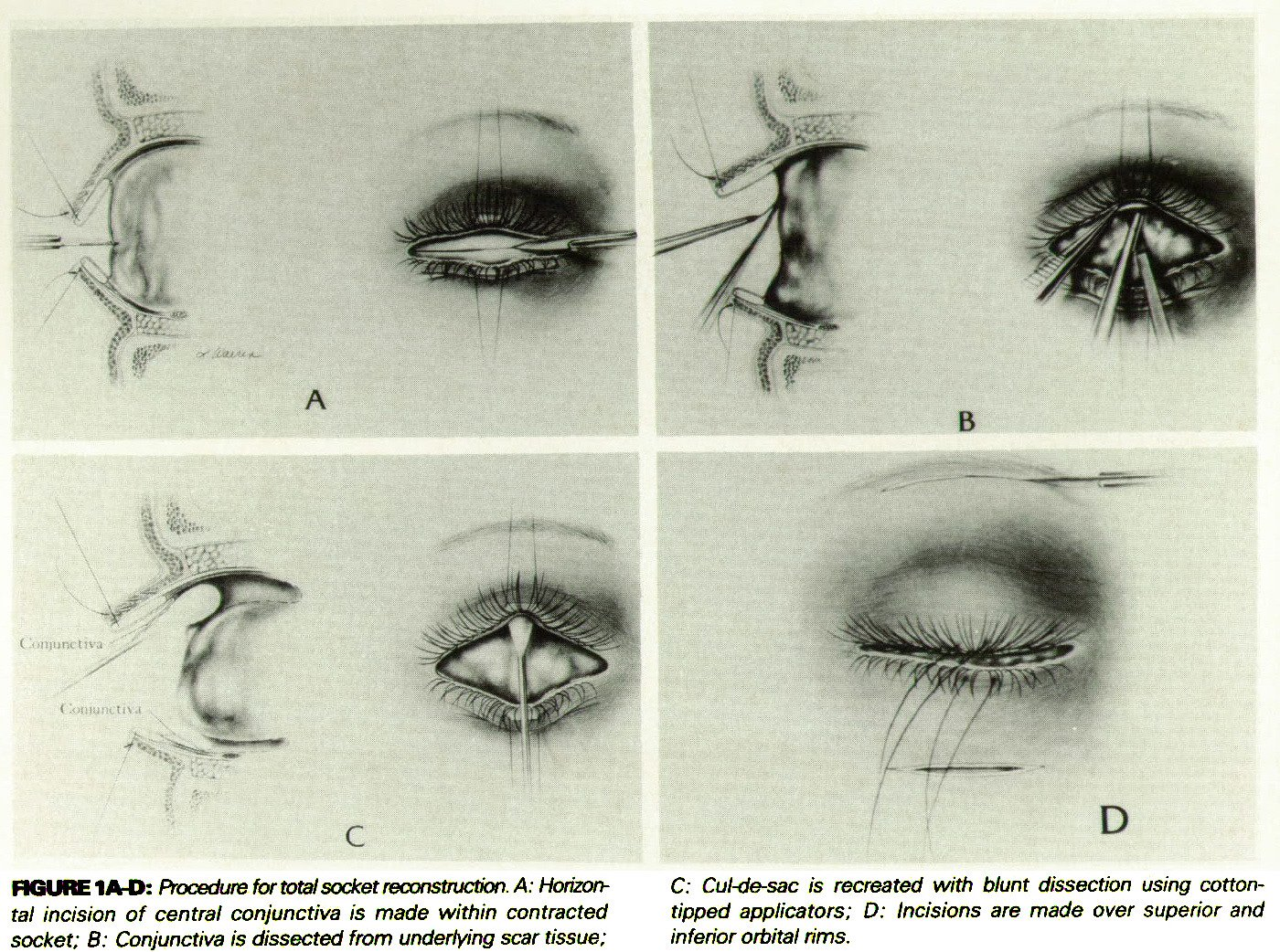 A Surgical Technique For The Successful And Stable Reconstruction Of