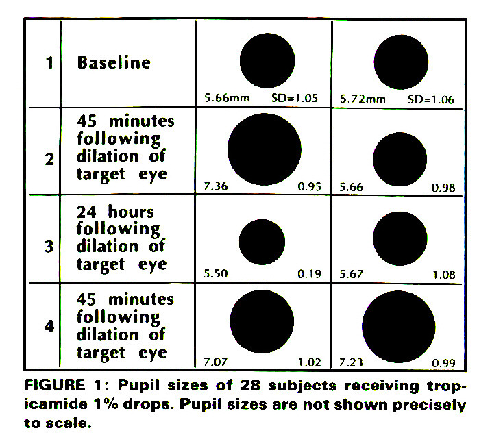 Reduced Mydriasis From Repeated Doses Of Tropicamide And Cyclopentolate