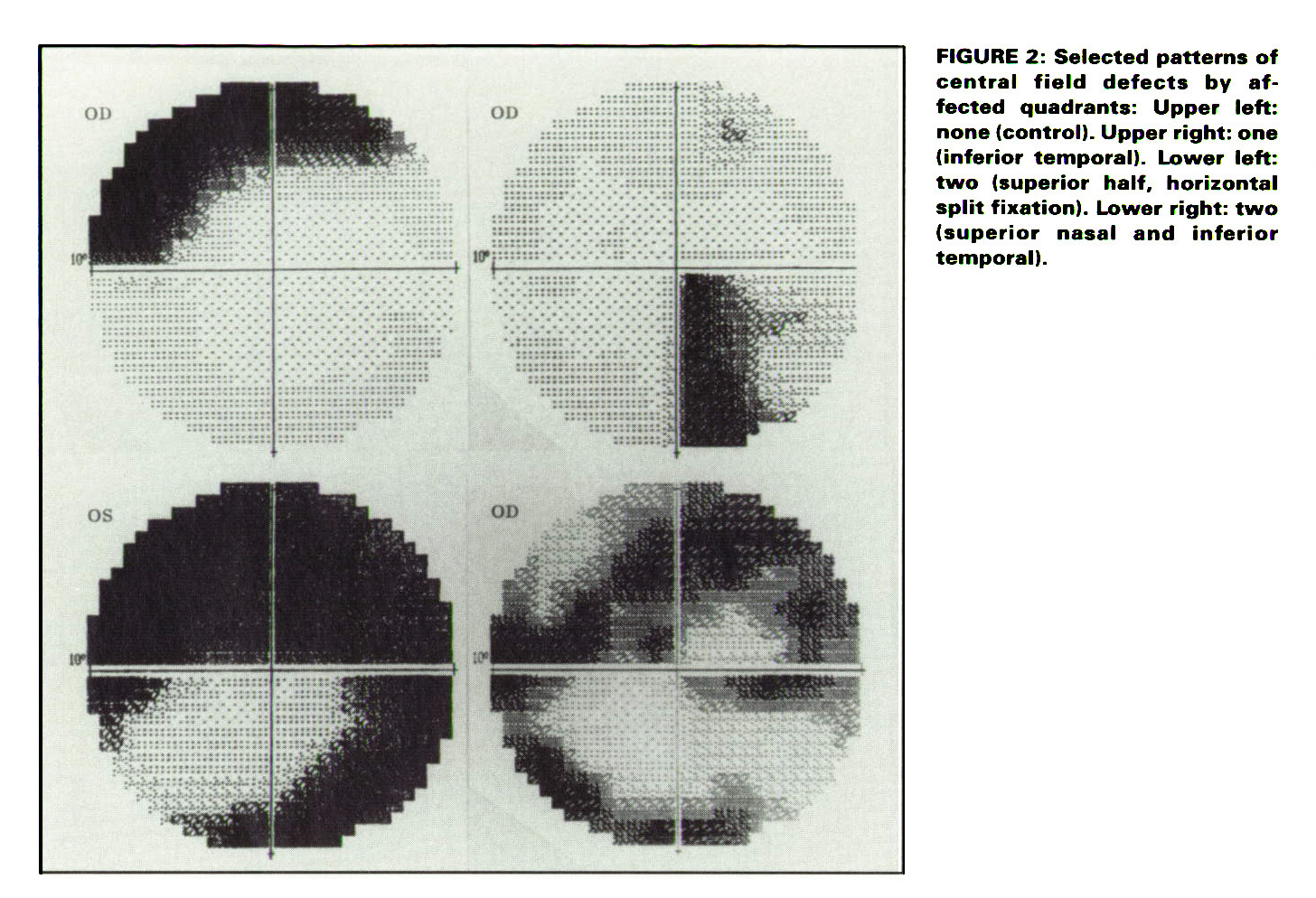 Central Visual Field, Visual Acuity, And Sudden Visual -4706