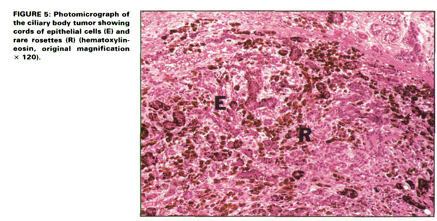 FIGURE 5: Photomicrograph of the ciliary body tumor showing cords of epithelial cells (E) and rare rosettes (R) (hematoxylineosin, original magnification x 120).
