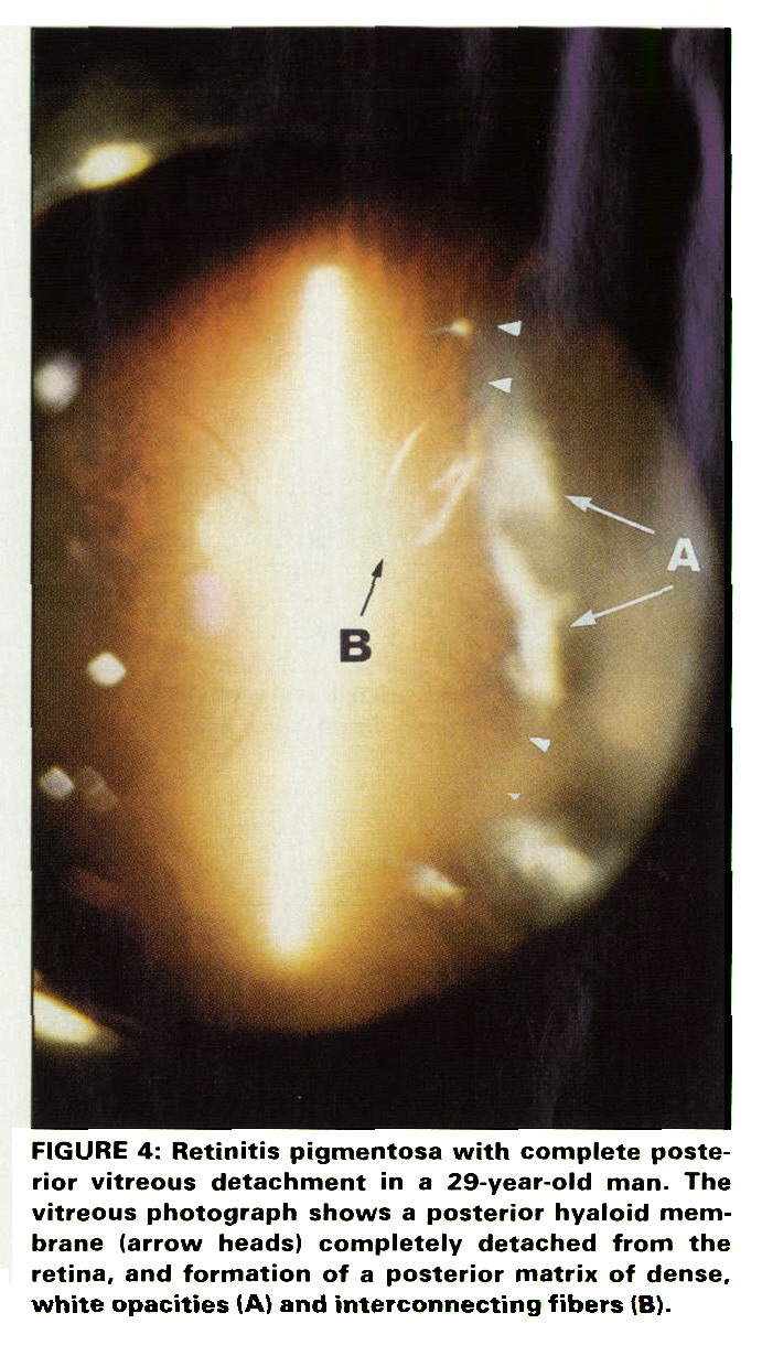 FIGURE 4: Retinitis pigmentosa with complete posterior vitreous detachment in a 29-year-old man. The vitreous photograph shows a posterior hyaloid membrane (arrow heads) completely detached from the retina, and formation of a posterior matrix of dense, white opacities (A) and interconnecting fibers (B).