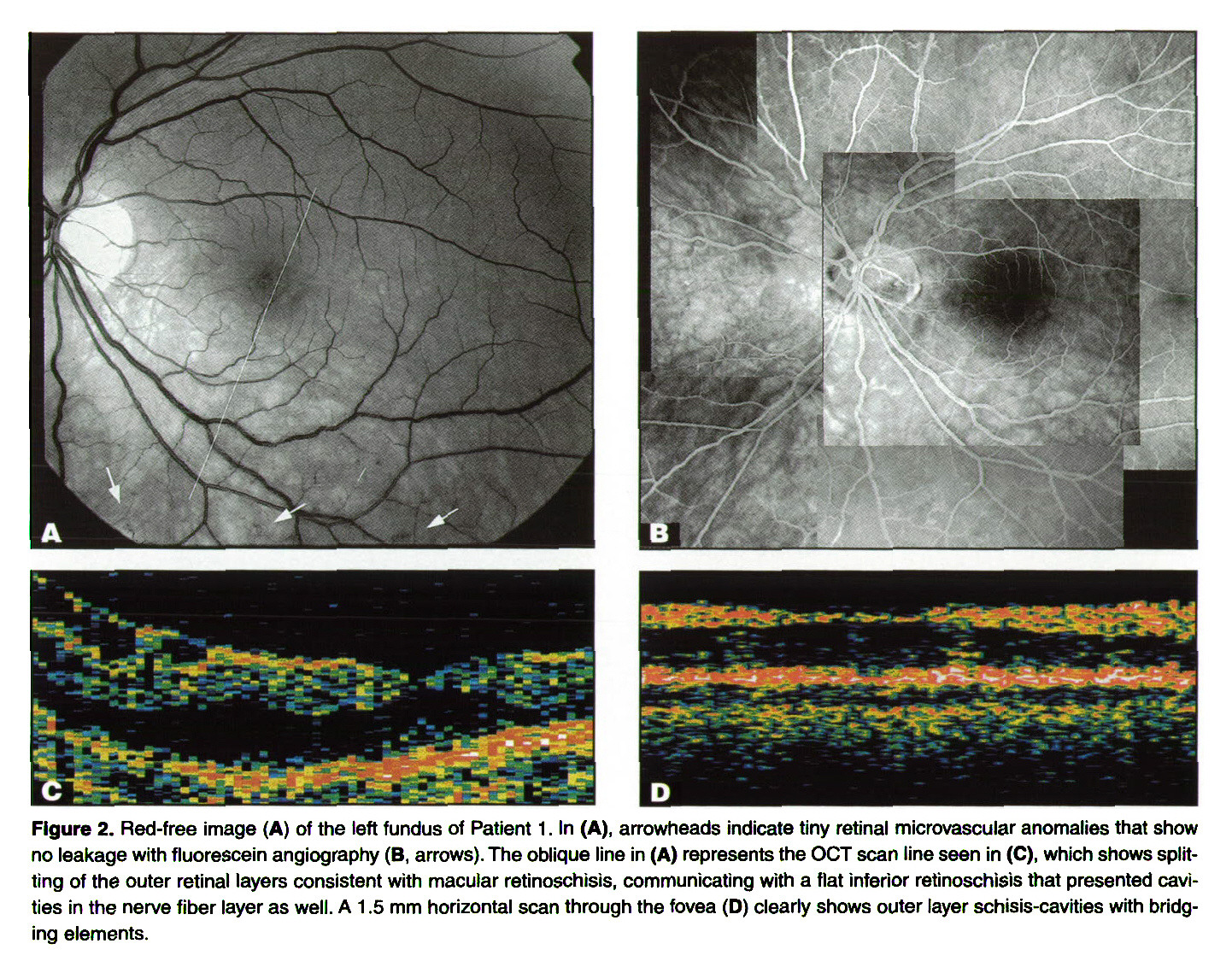 Figure 2. Red-free image (A) of the left fundus of Patient 1 . In (A), arrowheads indicate tiny retinal microvascular anomalies that show no leakage with fluorescein angiography (B, arrows). The oblique line in (A) represents the OCT scan line seen in (C), which shows splitting of the outer retinal layers consistent with macular retinoschisis, communicating with a flat inferior retinoschisis that presented cavities in the nerve fiber layer as well. A 1.5 mm horizontal scan through the fovea (D) clearly shows outer layer schisis-cavities with bridging elements.