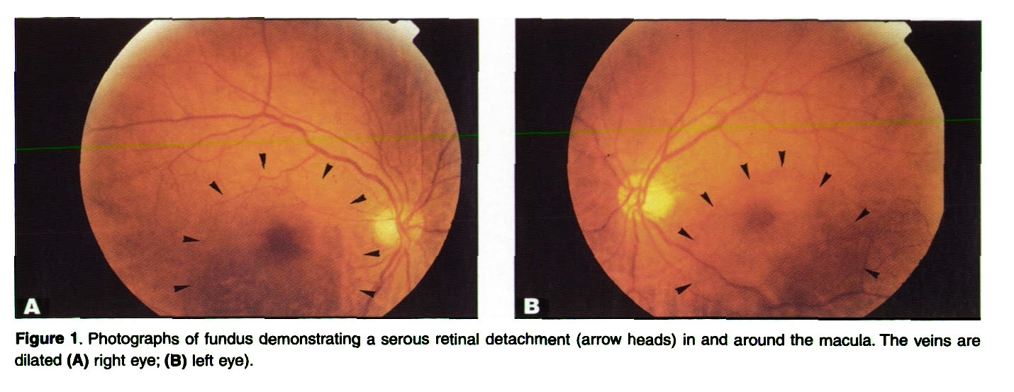 Figure 1. Photographs of fundus demonstrating a serous retinal detachment arrow heads) in and around the macula. The veins are dilated (A) right eye; (B) left eye).