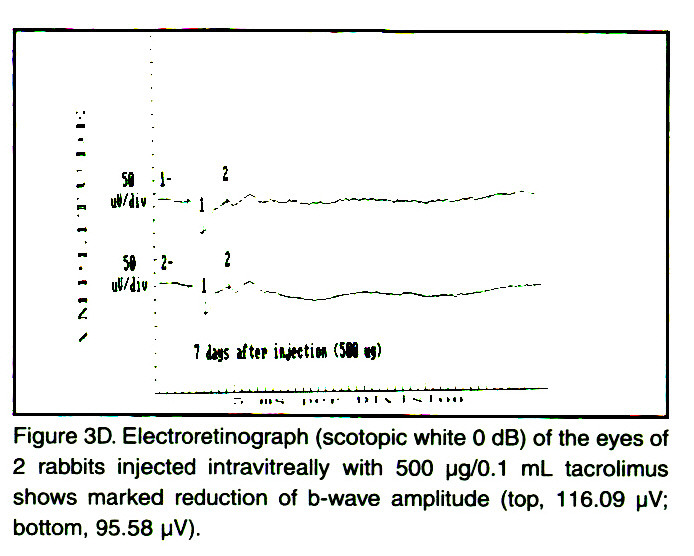 Figure 3D. Electroretinograph (scotopic white O dB) of the eyes of 2 rabbits injected intravitreally with 500 µg/0.1 ml_ tacrolimus shows marked reduction of b-wave amplitude (top, 116.09 pV; bottom, 95.58 µV).