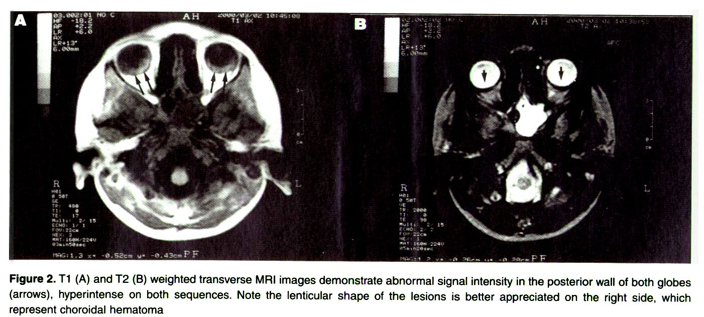 T1 A And T2 B Weighted Transverse MRI Images