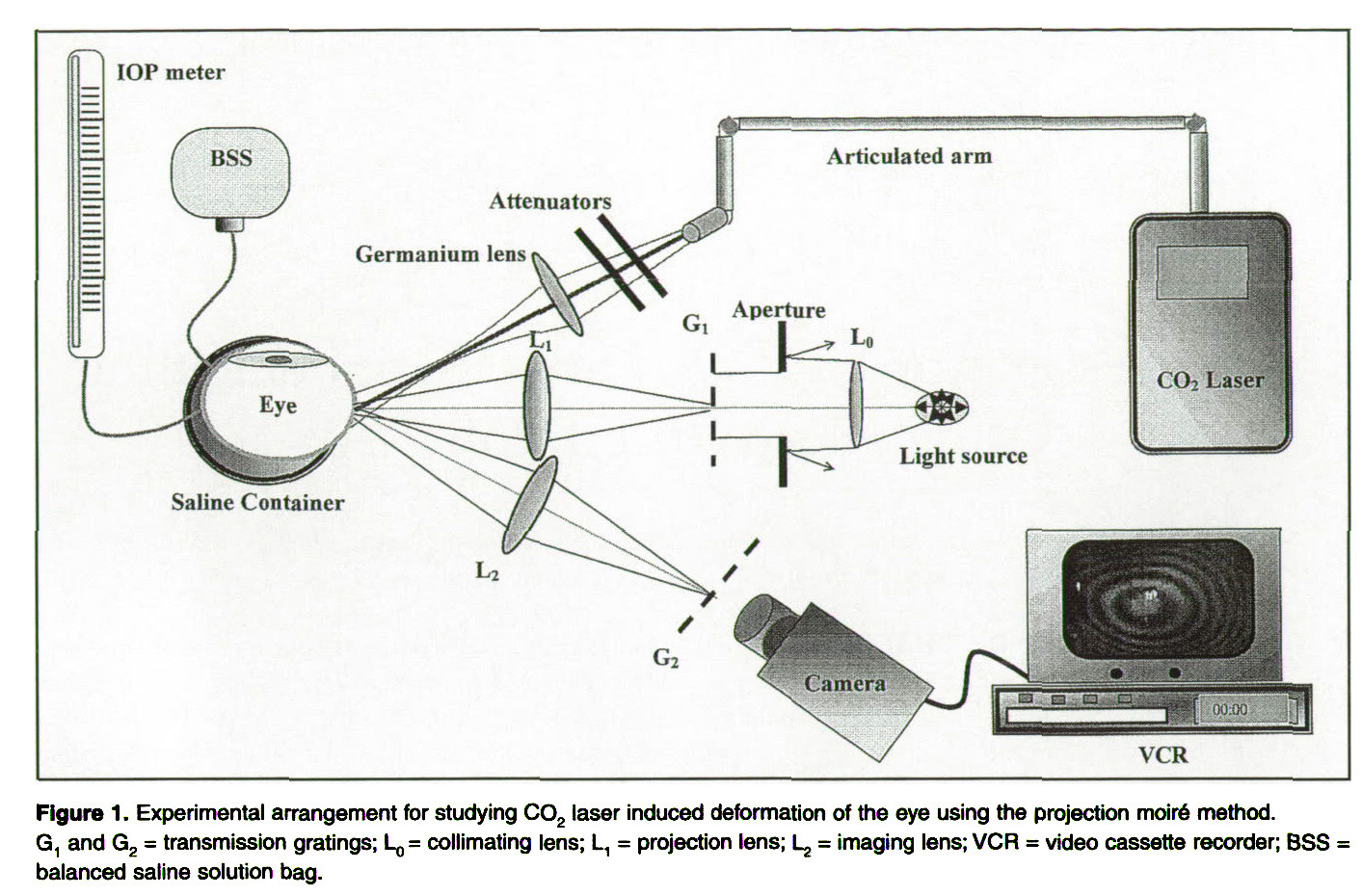 an investigation of co2 laser scleral buckling using moir u00e9