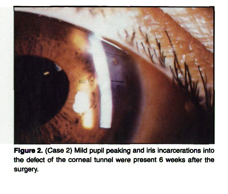 Figure 2. (Case 2) Mild pupil peaking and iris incarcerations into the defect of the corneal tunnel were present 6 weeks after the surgery.