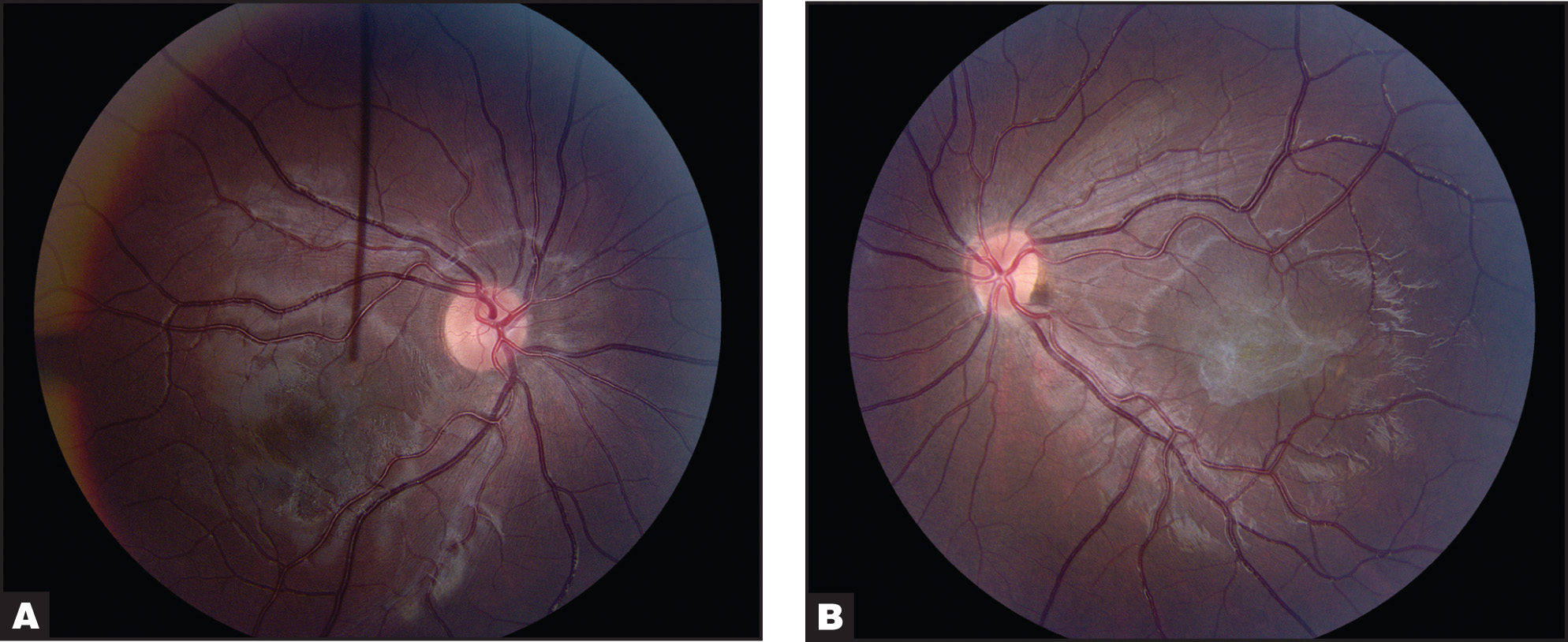 Color Fundus Photographs of Case 1. (A) Thin, Translucent Epiretinal Membrane in the Right Eye with 20/20 Visual Acuity. (B) Thick, Broader Epiretinal Membrane in the Left Eye with 20/200 Visual Acuity.