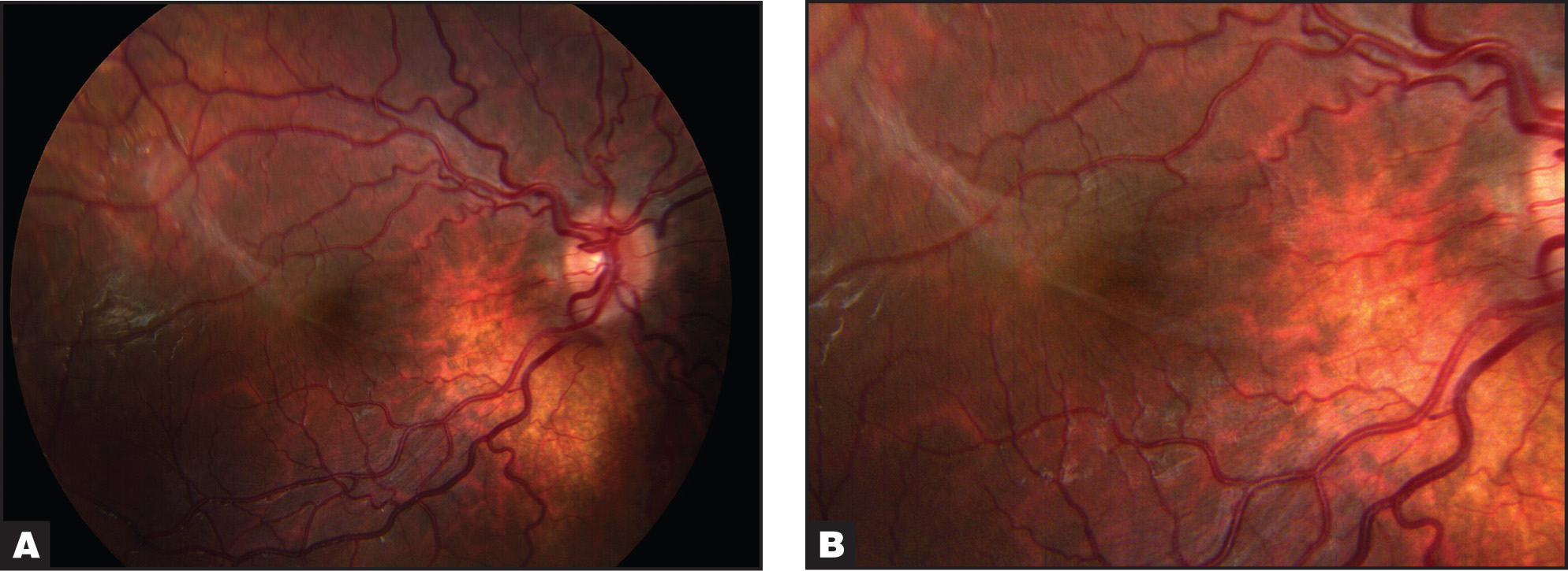 Color Fundus Photograph of Case 2. (A) Broad Epiretinal Membrane in the Right Eye. (B) Close-Up View of Perifoveal Tortuous Vessels.