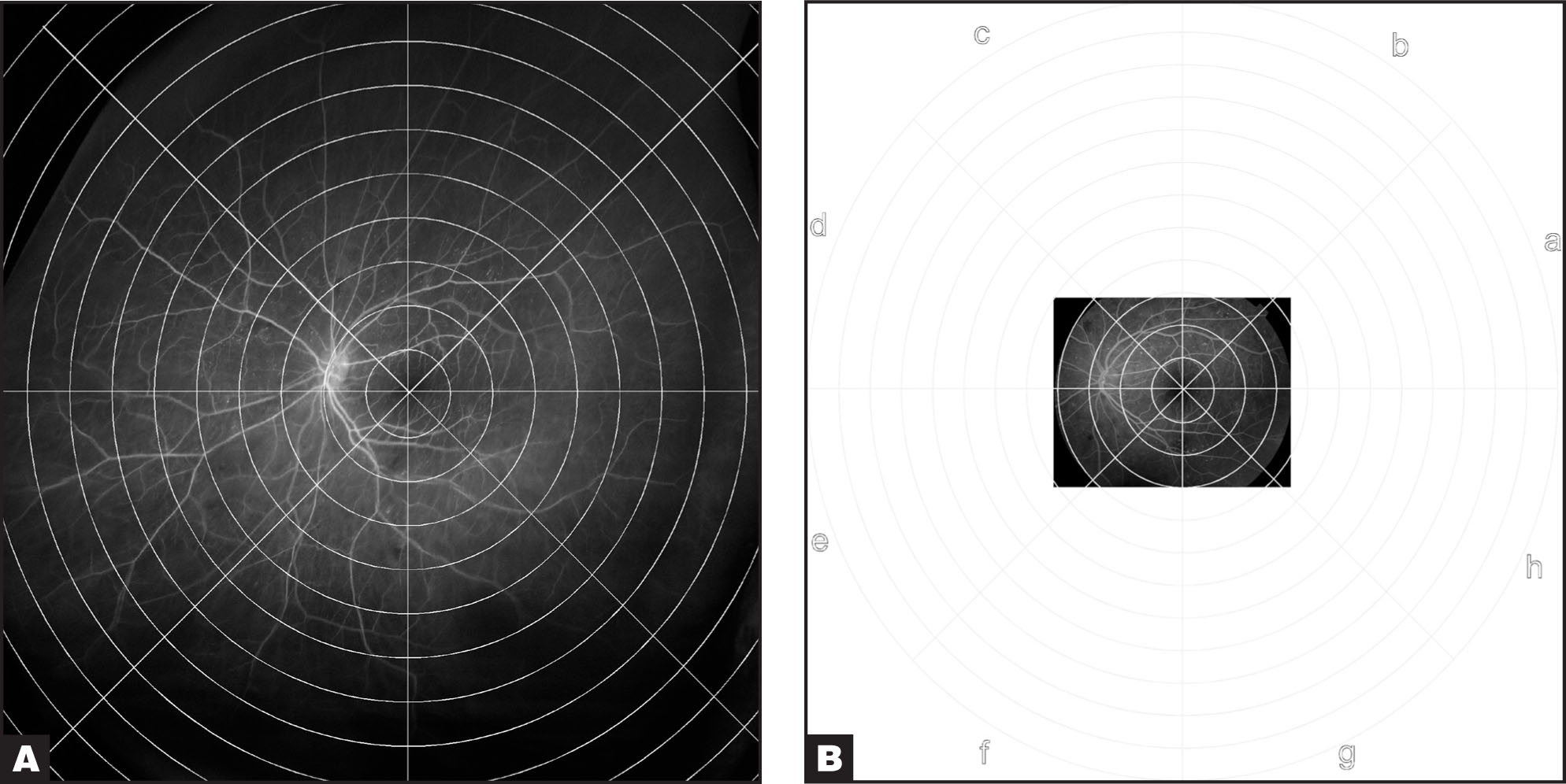 Digital Grids Have Been Superimposed on the Images in Figure 1 to Facilitate the Quantification of the Field of View Differences and Areas of Ischemia and Retinal Neovascularization. the Distance Between Consecutive Rings Is 1 Disc Diameter. the Ultrawide Device Images Significantly More of the Fundus (A) Compared to the Image Obtained by a Conventional Digital Camera (B).