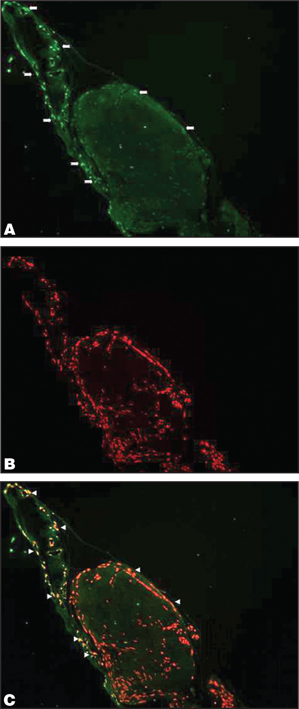 Photomicrographs of Fibrovascular Diabetic Membranes Excised at Surgery. (A) Arrows Indicate in Situ Terminal Deoxynucleotidyl Transferase-Mediated dUTP Nick End Labeling (TUNEL)-Positive Cells Revealed by Fluorescence. (B) Propidium Iodide-Red Fluorescence Reveals Cell Nuclei. Superimposition of (A) and (B), Arrows Indicate Positive Apoptotic Cells Revealed by Fluorescence (C).