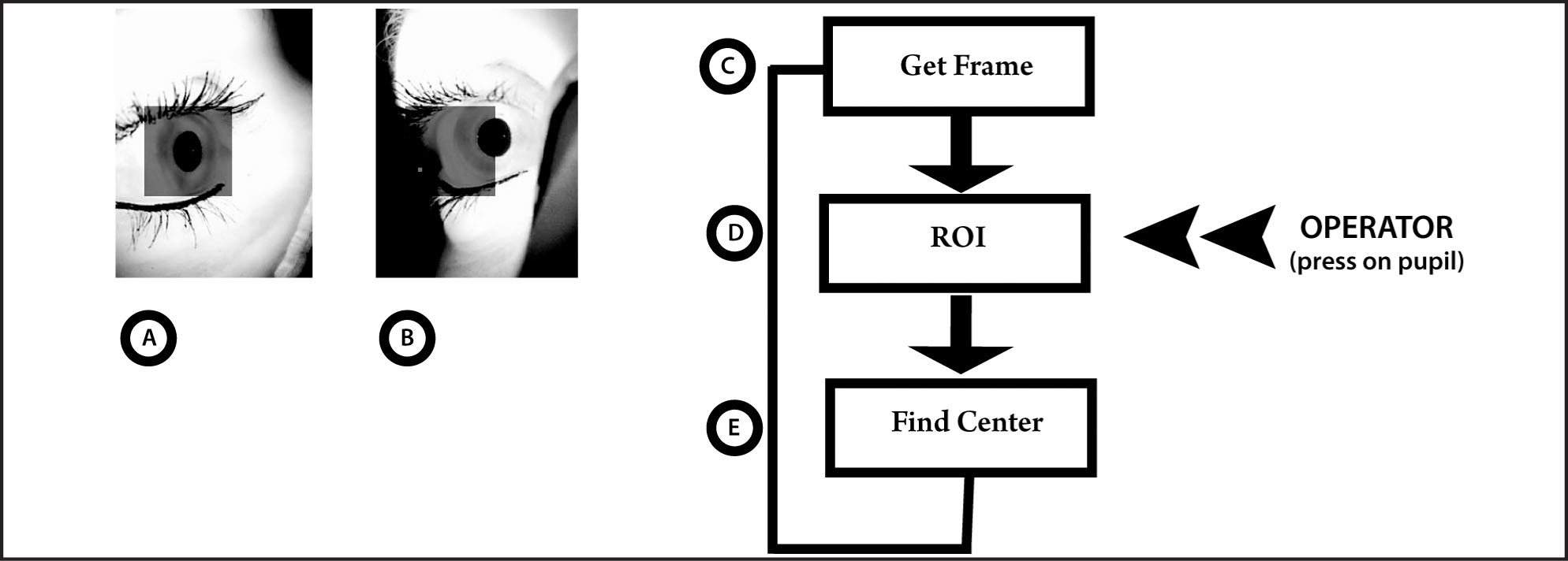 Pupil Center Detection. An Automated Algorithm to Track the Pupil Was Developed on a Matlab (Mathworks, Natick, MA) Platform. Specifically, It Analyzes the Digital Images to Detect the Pupil Center and Moves the Optic System Through the Control of Stepper Motors. The Process Consists of the Following Steps: (C) Images Are Acquired by the Left (A) and Right (B) Webcams, Respectively, and (D) a Region of Interest (ROI) Is Defined. The Operator Confirms or Overwrites the Area to Compute and (E) the ROI Is Analyzed to Find the Pupil Center.