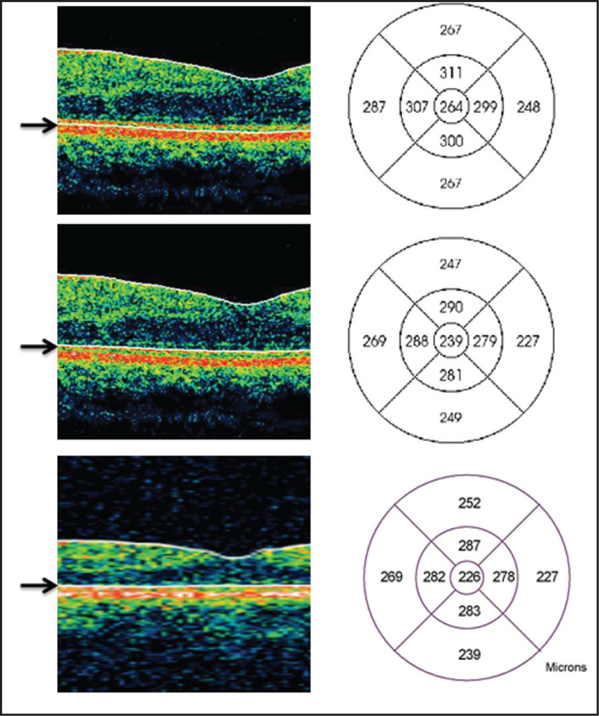 Section of B-Scan Showing Two Different Outer Boundary Limit Options in Topcon 3D OCT 1000 (Topcon Medical Systems, Paramus, NJ): Upper Border of Retinal Pigment Epithelium (center Subfield Thickness = 264 μm, Top) and Inner Segment–Outer Segment Junction (center Subfield Thickness = 239 μm, Middle). Corresponding Stratus (Carl Zeiss Meditec, Inc., Dublin, CA) Image (center Subfield Thickness = 226 μm, Bottom) Is Shown for Comparison.