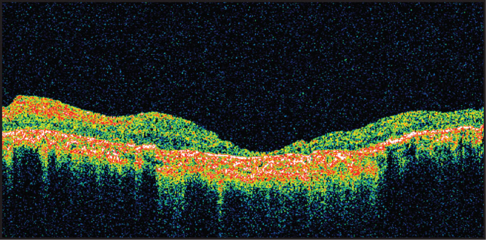 Patient with Retinitis Pigmentosa and Atrophic Retina. The Retinal Thickness at the Foveola Is 41 μm. Note the Absence of Most Retinal Layers.