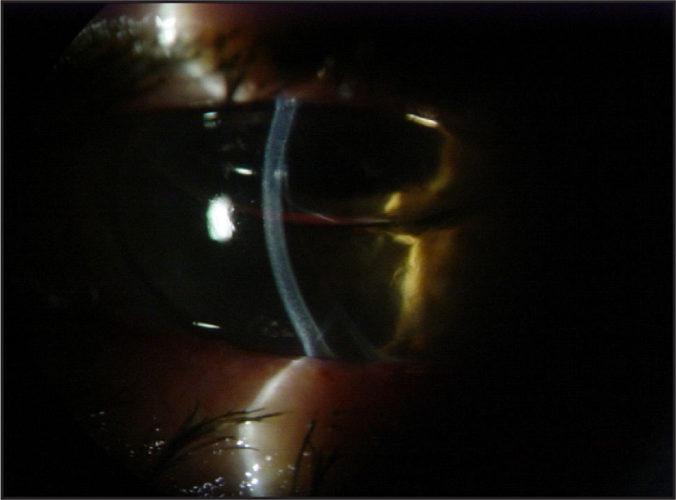 Three Days after Intracameral C3F8 Gas Injection, Slit Lamp View shows a Clear Cornea and a Bubble.