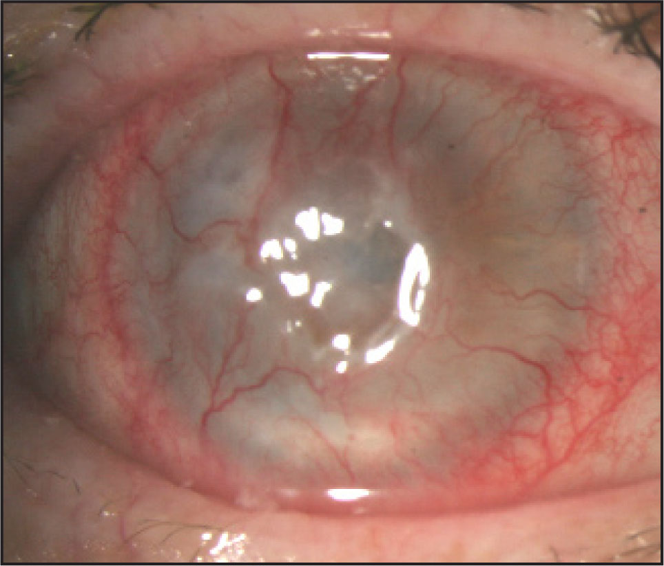 Slit Lamp Photograph of the Right Eye Demonstrating 360° of Superficial Corneal Neovascularization with Central Thinning.