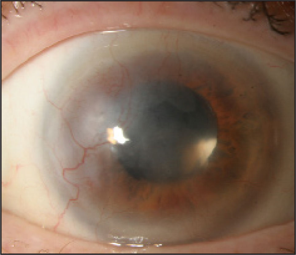 Slit Lamp Photograph of the Right Eye 1 Month After Commencement of Bevacizumab Eye Drops Demonstrating Marked Improvement in Corneal Neovascularization.