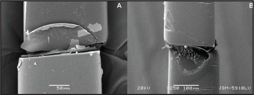 (A) Electron Microscopy of Haptic Surfaces of the Iris-Claw Lens Covered with a Membrane. (B) Electron Microscopy of Haptic Surfaces of the Iris-Claw Lens Showing Impressions.