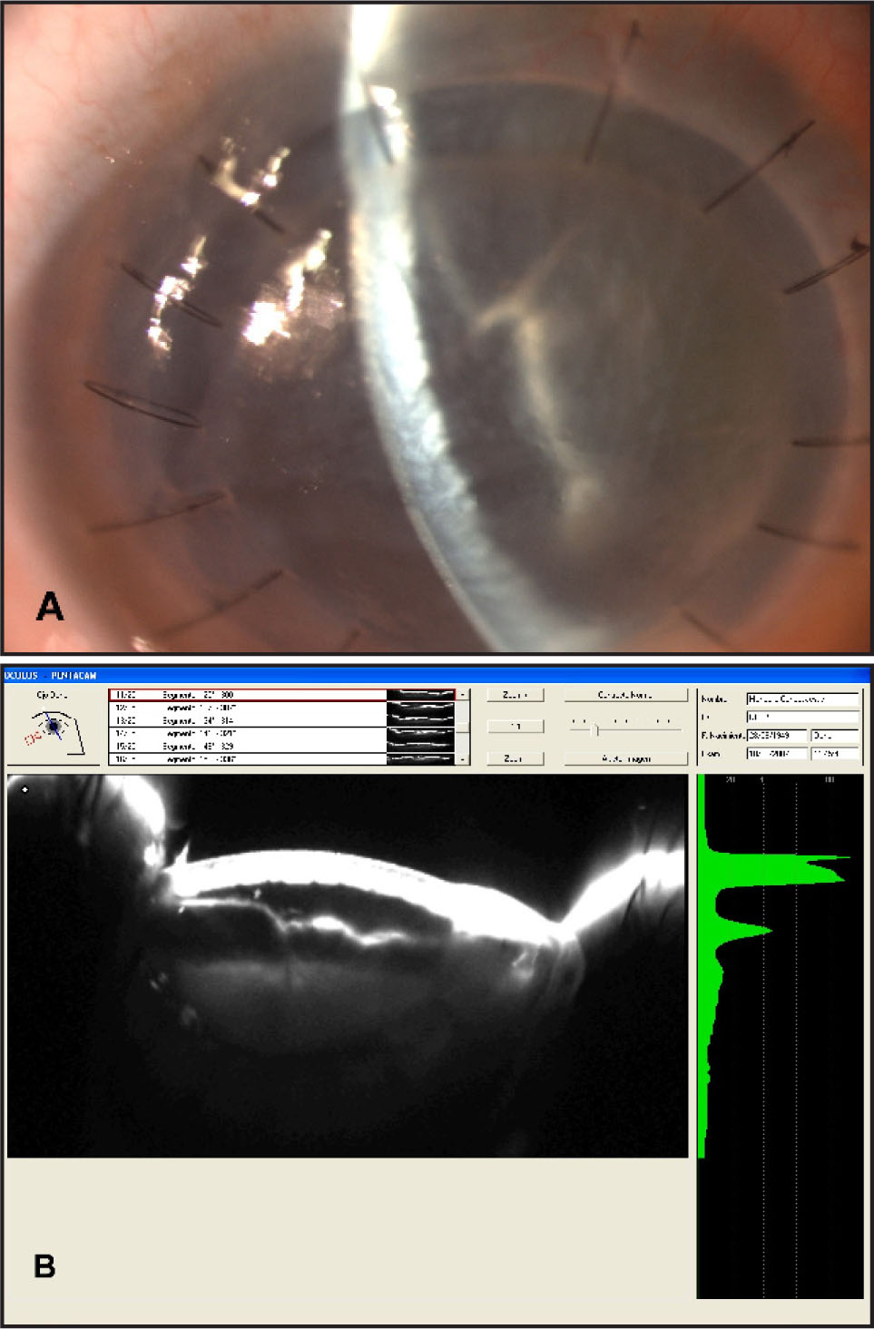 First Postoperative Day. (A) Severe Corneal Edema and Double Anterior Chamber Seen in Slit Lamp Examination. (B) Scheimpflug Images (pentacam): Descemet's Membrane Detachment and Double Anterior Chamber.