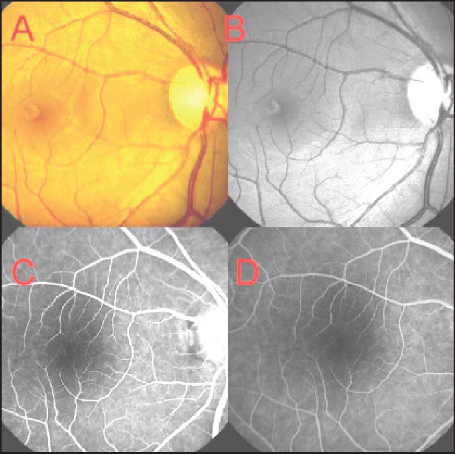 (A, B) Fundus Examination Revealed a Grayish White Spot Close to Fovea in the Right Eye. (C, D) Fluorescein Angiography of the Right Eye Demonstrated a Mild Early Transmission Defect in the Foveal Region Without Late Staining.