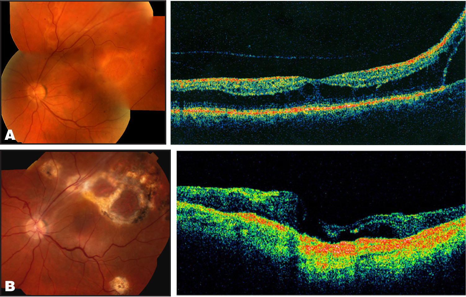 (A) Left: Montage Photograph of Case 3 Showing the Superior Temporal Retinoschisis Extending to the Foveal Edge. Right: OCT of the Left Eye Showing Combined Retinoschisis and Retinal Detachment. To the Right of the Fovea and Extending into the Temporal Quadrant There is Subretinal Fluid Corresponding to the Retinal Detachment. (B) Left: Postoperative Montage Photograph of the Left Eye Showing a Flat Retina with Chorioretinal Scarring and an Encircling Scleral Buckle. Right: OCT Horizontal Cross Section Through the Fovea of the Left Eye Confirming Retinal Reattachment with Residual Macular Edema.