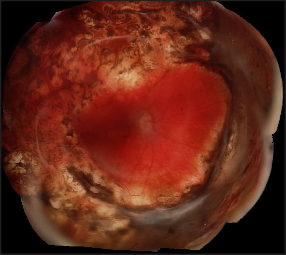 Three Months After Removal of PFnO, the Retina Remains Attached Under Silicone Oil Tamponade.