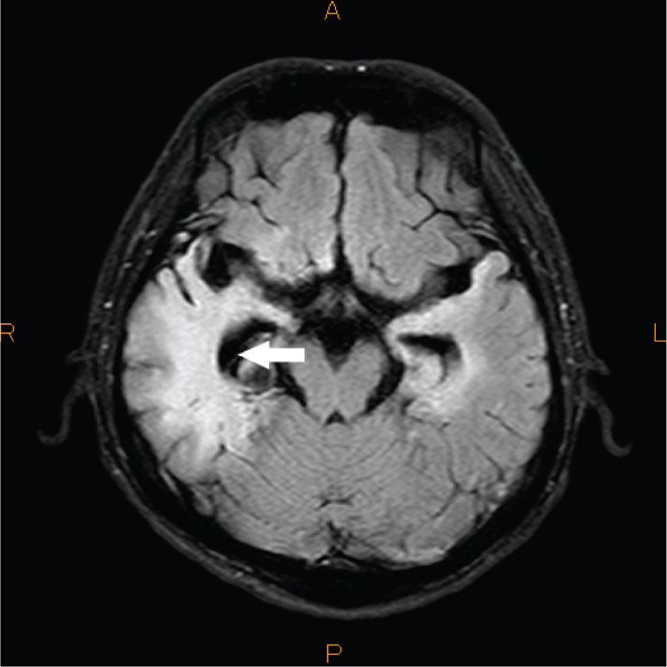 An MRI Scan Shows Nonspecific Enhancement of the Right Temporal Area (arrow).