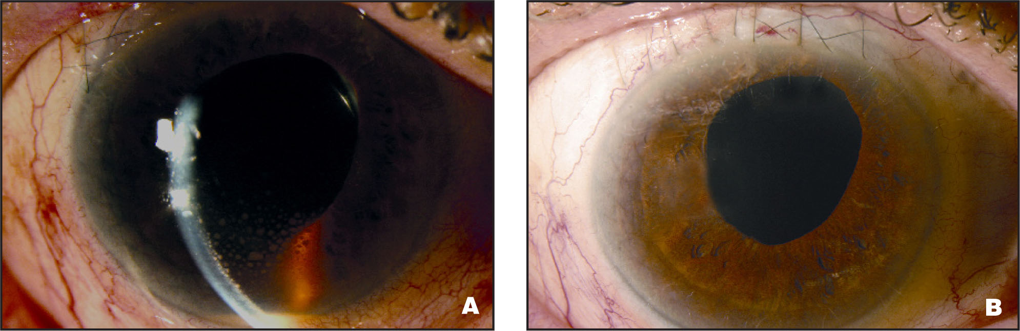 (A) Conjunctival Injection, Hypopyon, and Pigmented Granulomatous KPs (Patient 1, Table 1). (B) Complete Resolution of KPs Following Successful Surgical Management (Patient 1, Table 2).