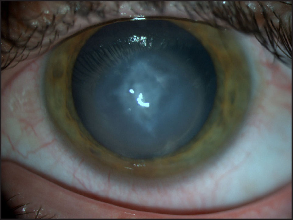 Appearance of Acute Hydrops in Keratoconus by Slit-Lamp Examination at Presentation.