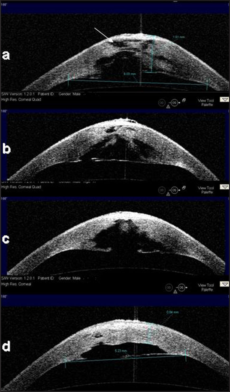 Anterior Segment Optical Coherence Tomography (AS-OCT) Images of Acute Hydrops in Chronological Order. The Findings were Similar in 4 Quadrants Therefore only Horizontal Images Have Been Presented for Comparison. (a) High Resolution Corneal Image on Horizontal Meridian at Presentation. A Large Defect in the Descemet's Membrane is Noticeable. There are Numerous Stromal Pseudocysts with Different Sizes Having Contact with Each Other in a Petalloid Pattern. White Arrow Indicates the Thinnest Part of the Cornea–the epitheliocele. The Diameter of the edematous Zone in the Cornea was Measured as 6.03 mm; The Thickness was 1.61 mm. (b) AS-OCT Image of the Eye One Month Later. The Pseudocysts in the Anterior Stroma Tend to Coalesce and Form a Big Conical Pseudocyst Posteriorly. The Epitheliocele has Become Thicker; The Descemet's Membrane Shows a Double Contour at One End. (c) AS-OCT Image of the Eye 2 Months Later. One Big Pseudocyst has Formed Between the Descemet's Membrane and Stroma. The Free Edges of the Descemet's Membrane are Rolled Inwards and Appear Thicker. (d) AS-OCT Image of the Eye 4 Months Later. The Epitheliocele has Disappeared. The Corneal Stroma Appears Considerably Normal with No Clefts Between the Lamellae. The Pseudocyst is Narrower with a Smooth Lining. The Diameter of the Edematous Zone in the Cornea Decreased to 5.23 mm and the Thickness Reduced to 0.84 mm.