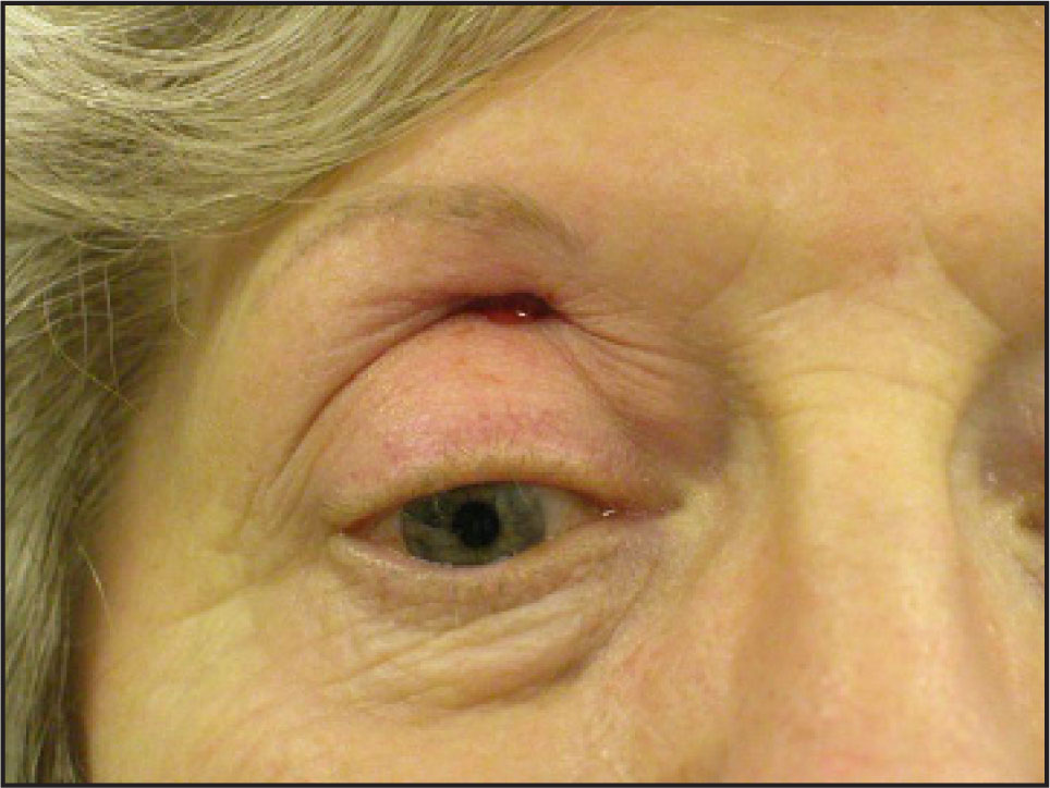 Color Photograph Showing Tight Upper Lid with Serosanguinous Discharge Following Drainage of the Abscess.