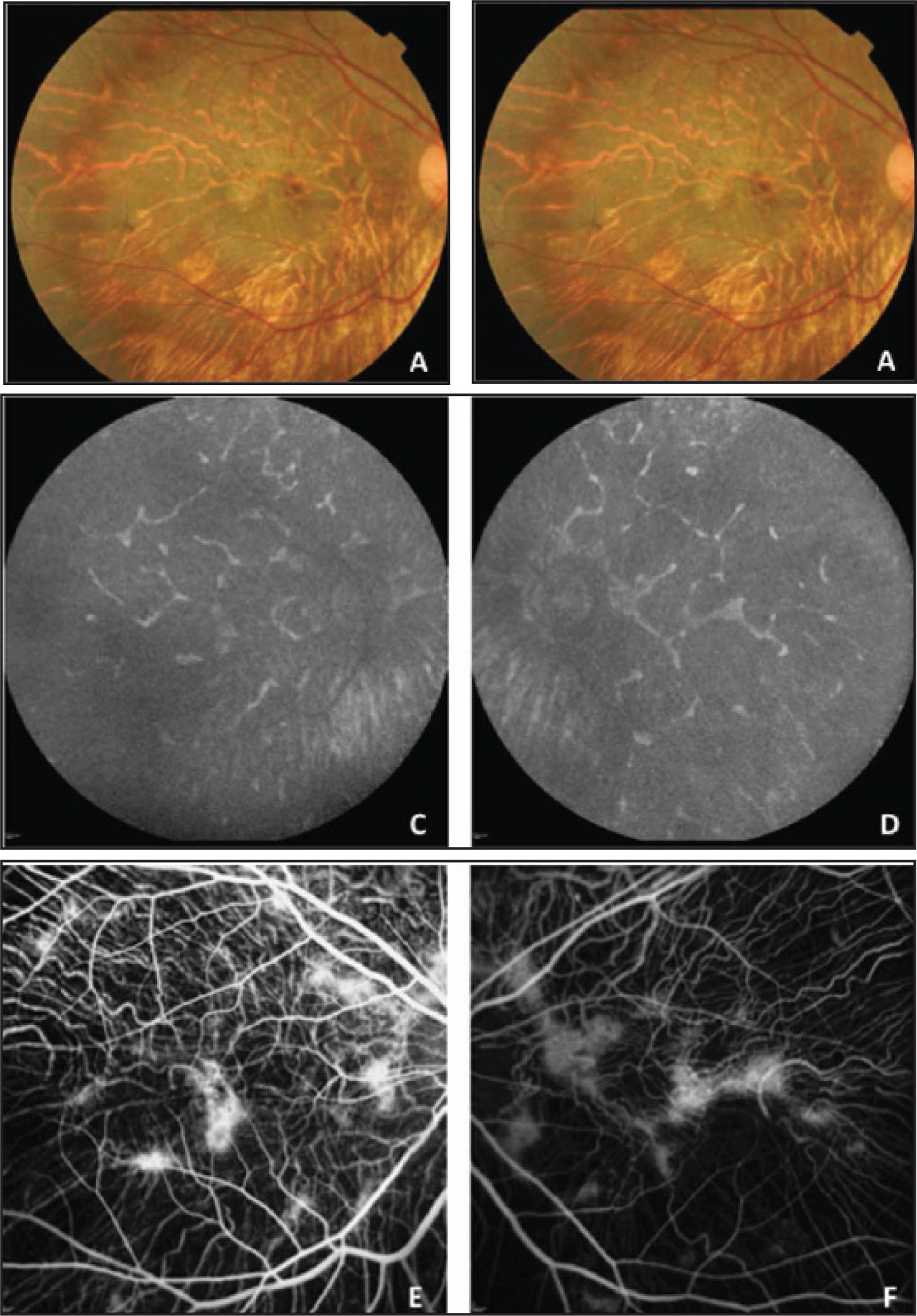 Color Fundus Photographs (A and B) Showing Bilateral Macular Pigment Mottling and Depigmentation, and Numerous Tiny Refractile Yellow Dots Scattered Throughout the Posterior Pole and the Mid-Periphery, Associated with Diffuse Choroidal and Retinal Pigment Epithelium (RPE) Atrophy and Pigment Accumulation. Fundus Autofluorescence Frames Revealing Widespread Hypo-Autofluorescence Corresponding to Diffuse RPE Atrophy, and Multiple Hyper-Autofluorescent Speckles in Correspondence of Residual RPE Areas (C and D). No Hyper-Autofluorescence Can Be Detected in Correspondence of the Retinal Crystals (C and D). Fluorescein Angiography (E and F) Showing Diffuse Advanced Choroidal Atrophy Characterized by a Marked Loss of the RPE and Choriocapillaris, and Multiple Hyper-Fluorescent Areas in Correspondence of Residual RPE.
