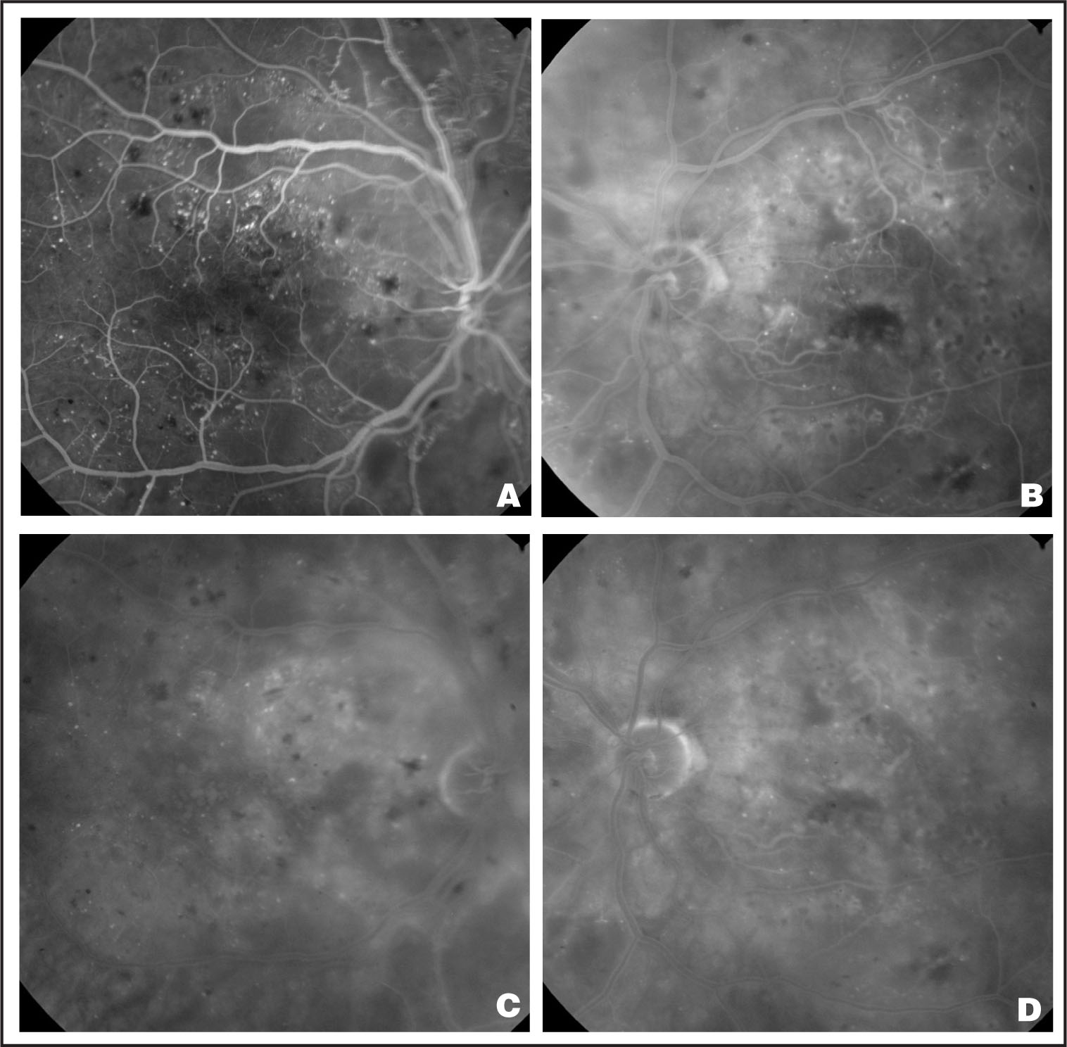 (A) Early-Frame Fluorescein Angiogram of the Right Eye in Case #1, Showing a Widened Foveal Avascular Zone. (B) Mid-Frame Fluorescein Angiogram of the Left Eye, Indicating a Widened Foveal Avascular Zone as Well as Early Diffuse Dye Leakage. (C and D) Late-Frame Fluorescein Angiograms of the Right Eye and Left Eye Respectively, Revealing Diffuse Dye Leakage.