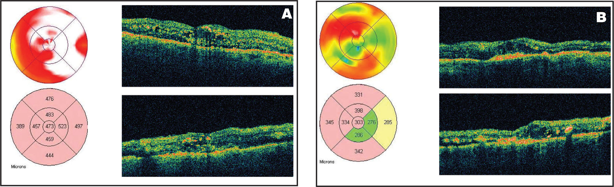 (A) Optical Coherence Tomography (OCT) of the Right Eye in Case #1, Showing Diffuse Macular Thickening of 473 Microns with Cystoid Spaces and Submacular Fluid. (B) OCT of the Left Eye also Shows Diffuse Macular Thickening, with a Central Macular Thickness of 303 Microns.