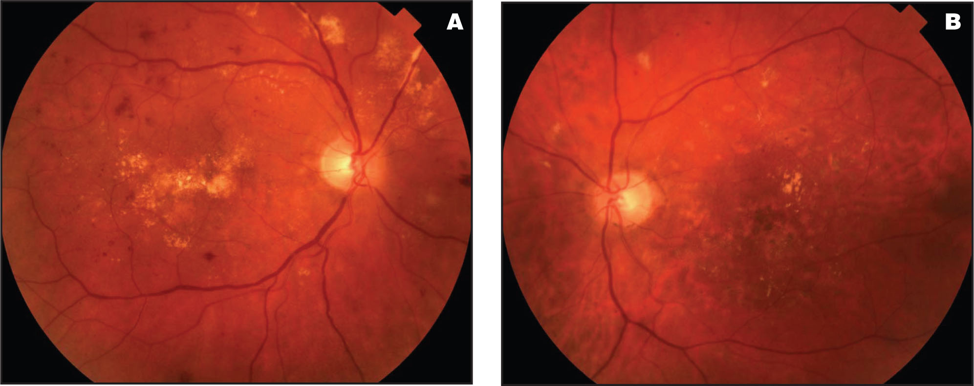 (A) Fundus Photograph of the Right Eye in Case #1 at 7 Months Post Injection, Showing Improvement in Macular Edema with Some Improvement in Vascular Sheathing as Well, Particularly Inferiorly. (B) Fundus Photograph of the Left Eye, Showing Improvement in Macular Edema and Prior Photocoagulation Spots.