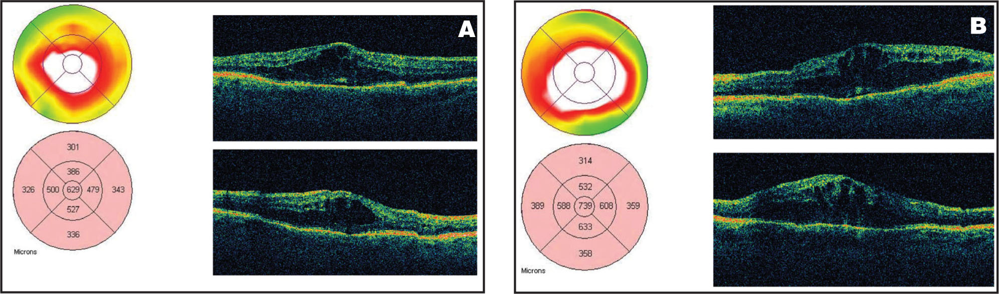 (A) OCT of the Right Eye in Case #2, Showing a Central Macular Thickness of 629 Microns. (B) OCT of the Left Eye, Showing that the Central Macular Thickness Was 739 Microns Prior to IVTA.