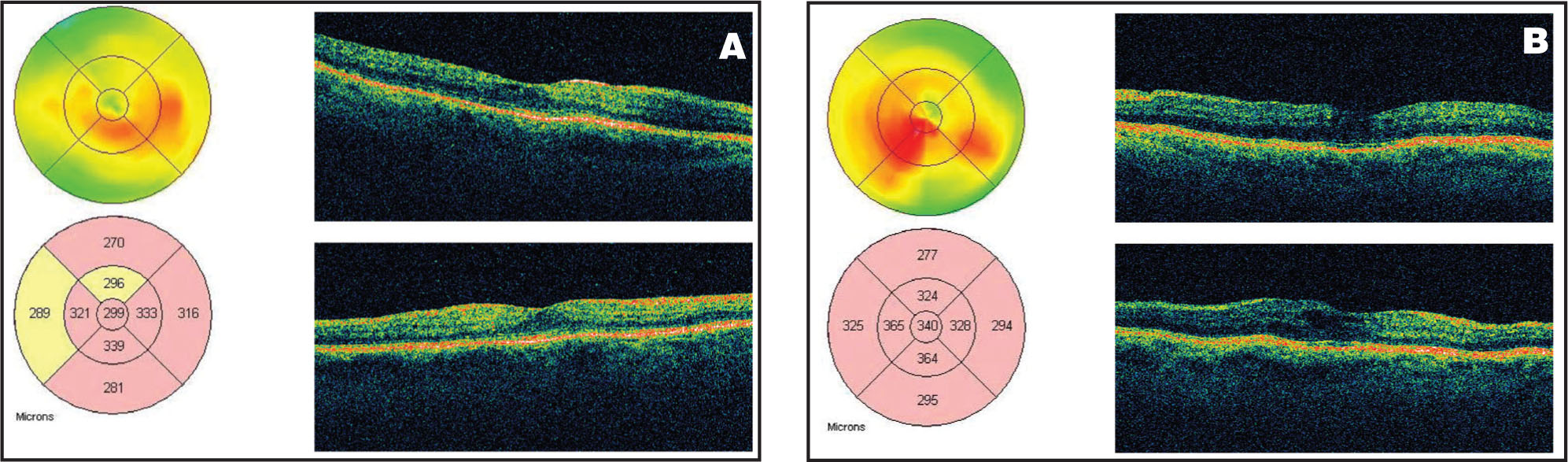 (A) OCT of the Right Eye in Case #2 at 3 Months Post Injection, Showing Improvement in Macular Thickening from 629 Microns to 299 Microns. (B) OCT of the Left Eye, Showing that the Macular Thickening Was Reduced from 739 Microns to 340 Microns at 3 Months After IVTA Injection.