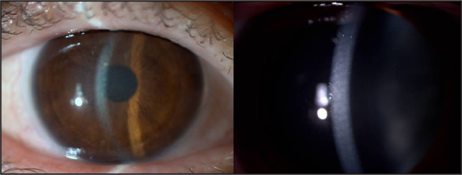 Biomicroscopic Images of the Corneal Opacities by Slit-Beam Illumination