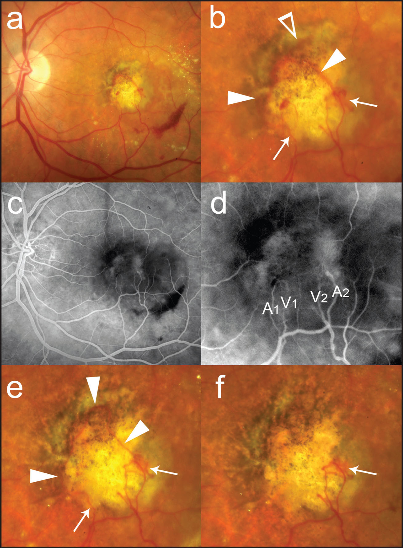The Left Eye of a 76-Year-Old Woman with Bilateral Exudative Age-Related Macular Degeneration Associated with Retinochoroidal Anastomoses (RAs). (A) Color Fundus Photograph Showing Subfoveal Choroidal Neovascularization (CNV), Subretinal Fluid, Inferotemporal Subretinal Hemorrhage, and Lipid Exudates. Visual Acuity (VA) was 20/200. (B) The Magnified Color Fundus Photograph of Figure A Demonstrated a Large-Size Vessel (open Arrowhead) that Originated from the Grayish, Active CNV Component Superiorly Adjacent to the Subfoveal Fibrotic Scar. The Bifurcation (solid Arrowheads) of the Large-Size Vessel was Seen on the Surface of the Fibrotic Scar, Connecting to Two Separate Sites of RA (arrows). (C) Fluorescein Angiogram Showed Mild Staining of the Fibrotic Component of the CNV. (D) The Magnified Fluorescein Angiogram of Figure C Indicates the Retinal Arterioles (A1, A2) and the Retinal Venules (V1, V2) in the Proximity of the RA. Compared to the Color Fundus Photographs (Figs. A and B), One RA Appears to have a Connection only with the Retinal Venule (V1), Whereas the Other RA Connects with Both the Arteriole (A2) and the Venule (V2). (E) After an Intravitreal Ranibizumab Injection, the Ingrowth Site (Fig. B, Open Arrowhead) of the Presumed Feeder Choroidal Vessel had Regressed and an Unusual Closed Loop-Like Vessel (arrowheads) had Developed. One Arteriole (Fig. D, A1) Became Invisible, but Both RAs Remained (arrows). (F) One Month After an Additional Intravitreal Ranibizumab Injection, the Loop-Like Vessel and One of the Draining Retinal Venules (Fig. D, V1) Disappeared, Leaving One RA Site (arrow) and the Related Anastomotic Arteriole and Venule (Fig. D, A2 and V2). VA was 20/200.