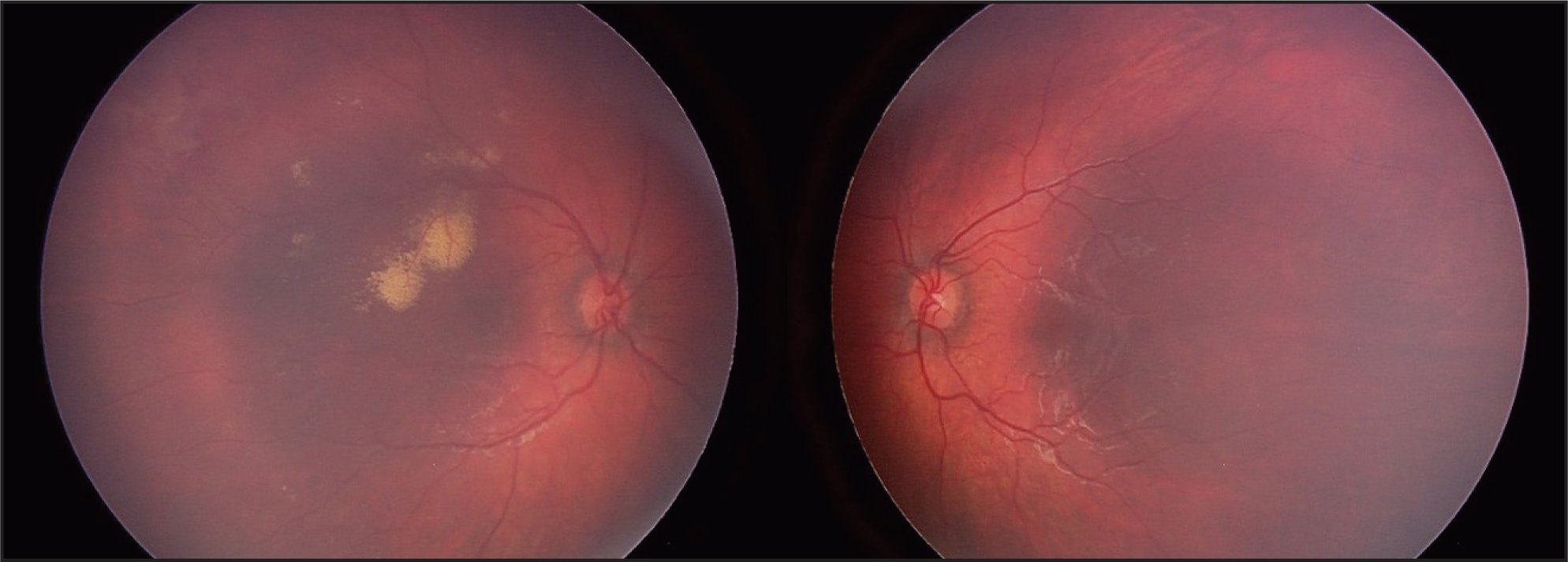 Unilateral Coats' Disease with Macular Exudate and Superotemporal Retinal Telangiectasias in the Right Eye.