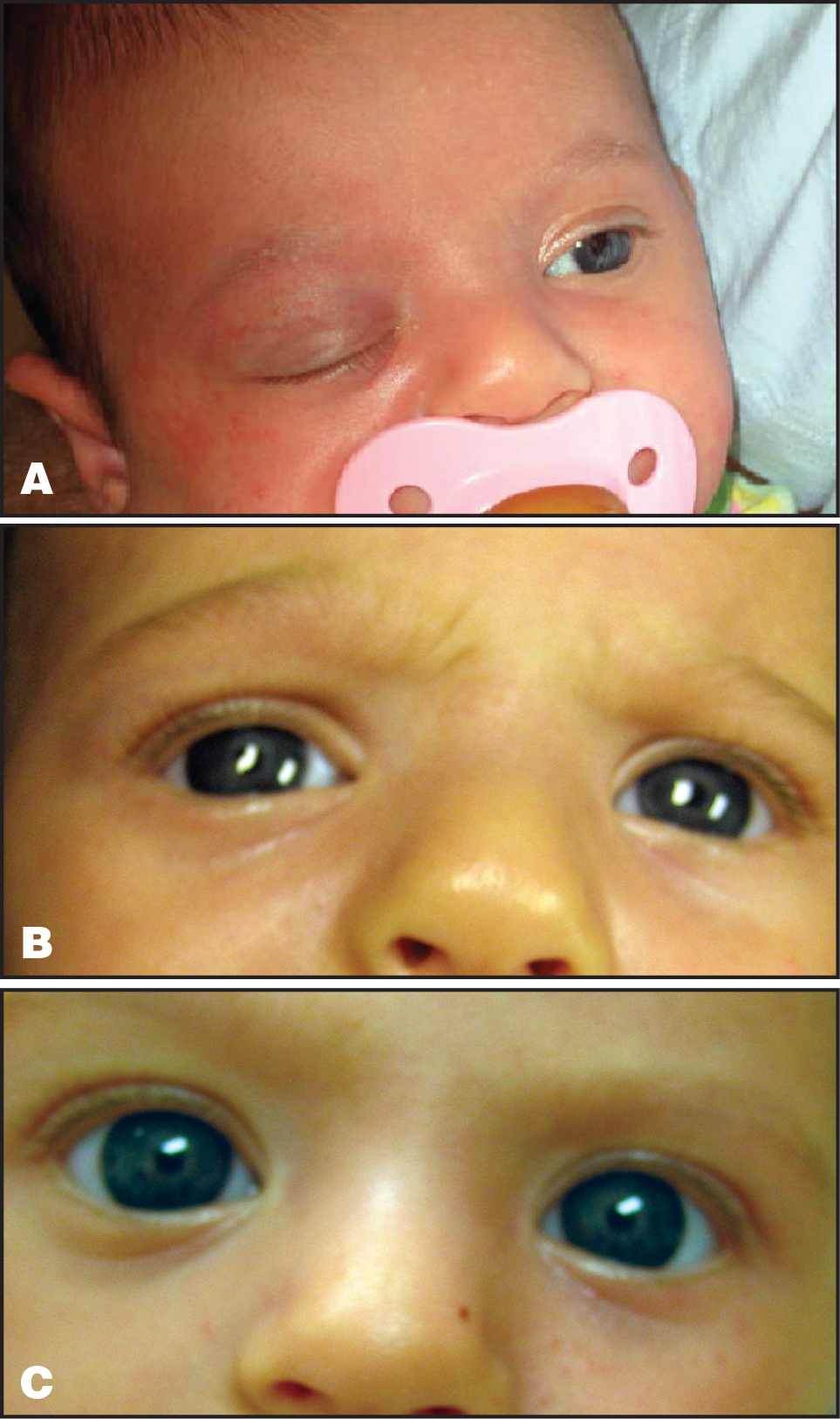 (A) Photograph Prior to Initiation of Propranolol Treatment. (B) Photograph 6 Days After Initiation of Propranolol Treatment. (C) Photograph 6½ Weeks After Initiation of Propranolol Treatment.