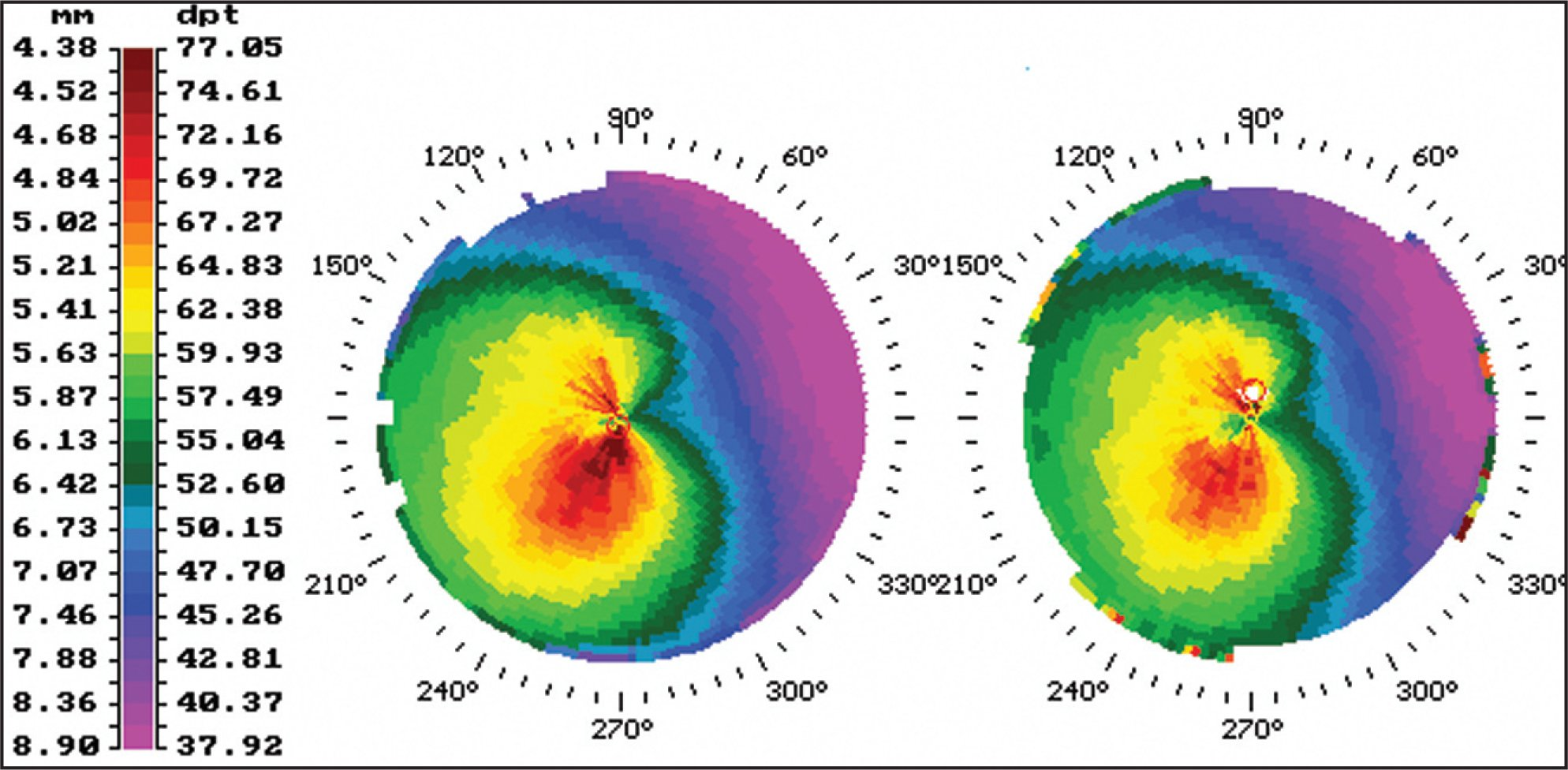 Corneal Topography (Technomed C–Scan, Baesweiler, Germany) Immediately Before (left) and 12 Months After (right) Corneal Collagen Cross-Linking Treatment.