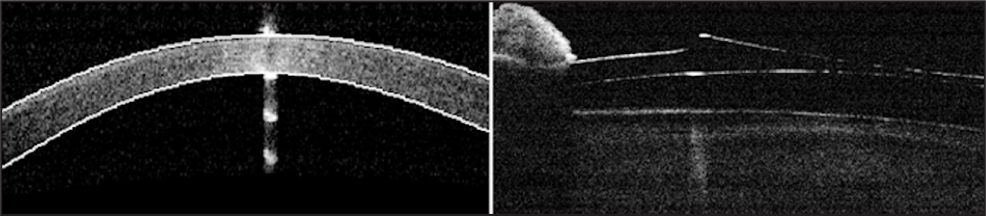 Anterior Segment Optical Coherence Tomography (RTVue, Model RT100; Optovue Inc., Fremont, CA) Showing the Corneal Thinning (left) and the Implanted Posterior Chamber Toric Implantable Collamer Lens (Visian ICL; STAAR Surgical, Monrovia, CA) (right).