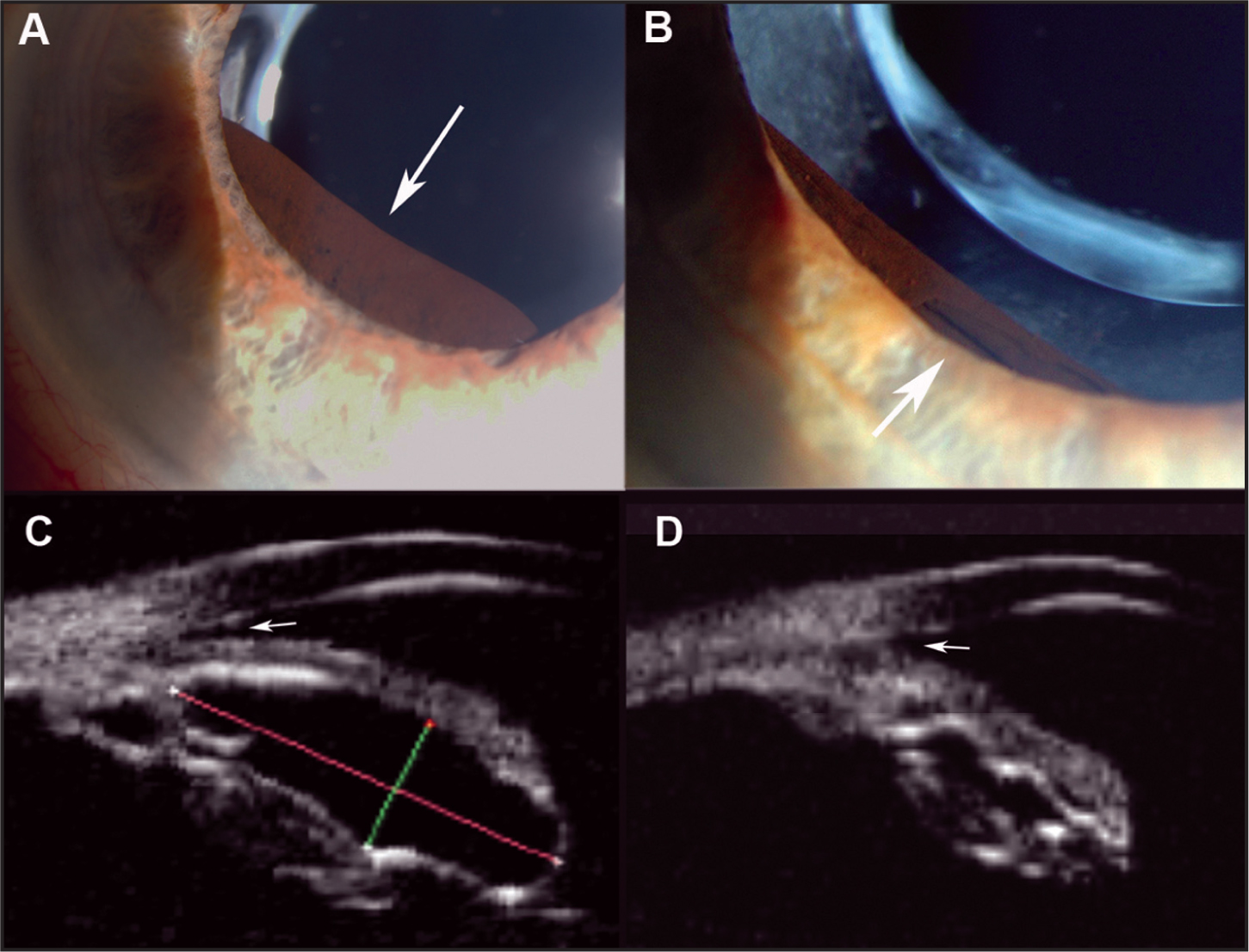 Case 1. Slit-Lamp Photography of Iris Pigment Epithelial Cyst Shows (A) Extension of the Cyst Beyond the Pupillary Border (arrow) and (B) a Deflated Cyst with Minimal Extension Beyond the Dilated Pupillary Border After Laser Cystotomy. The Image was Magnified to Demonstrate the Site of Cystotomy (arrow). (C) High-Frequency (35-MHz) Ultrasound in Longitudinal Section Before Laser Treatment Demonstrates the Large Cyst with Relative Appositional Angle Closure (arrow). (D) Markedly Reduced Intra-Luminal Diameter of the Cyst with Resolution of Angle Closure (arrow) After Laser Treatment.