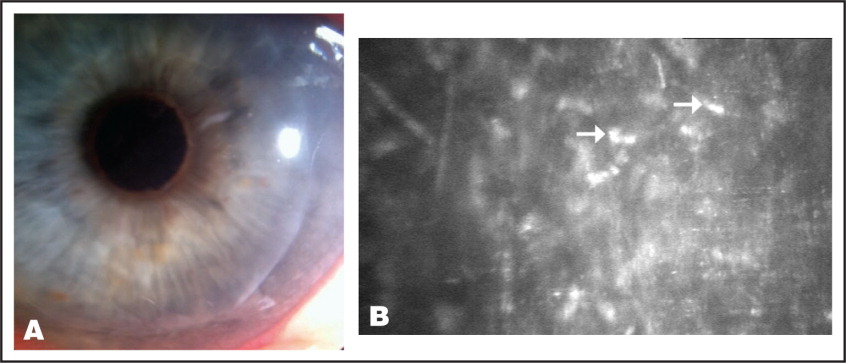 Case 2. (A) Slit-Lamp Microscopy Depicting a Small Interface Opacity in the Early Postoperative Period. (B) Confocal Microscopy Depicting Multiple Refractile Bodies Representing Budding Yeast (arrows) in the Corneal Stroma Consistent with Fungal Elements (original Magnification ×40).