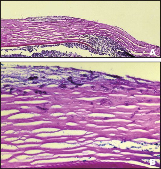 Case 2. (A) The Corneal Lenticule Exhibits Disruption of Descemet's Membrane and an Inflammatory Cell Infiltrate in the Area of Disruption (Periodic Acid-Schiff Stain, Original Magnification ×25). (B) There Are Numerous Fungal Elements (arrows) in the Stroma of the Lenticule (Periodic Acid-Schiff Stain, Original Magnification ×100).