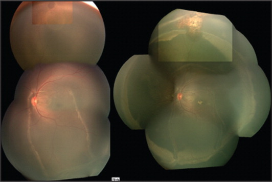 (Left) Montage fundus photograph with retinal hole at 12°. (Right) Montage photograph showing chorioretinal scar at the site of the retinal hole (12°) and retinal indentation from the scleral buckle.