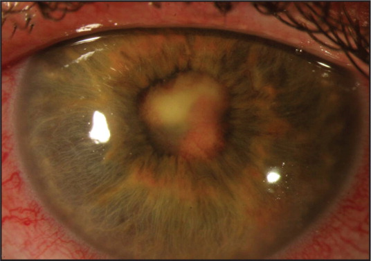 Slit-lamp photography taken several days after Figure 1 demonstrating increased conjunctival injection, extensive pupillary membrane, and anterior chamber shallowed by iris mass.