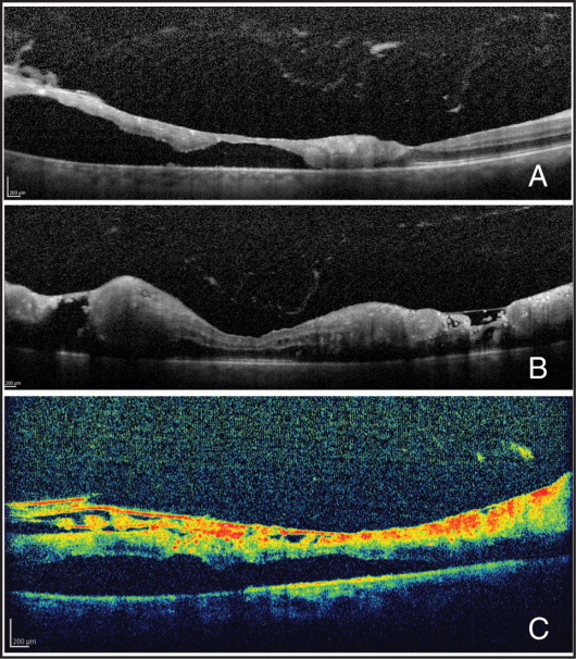High-definition spectral-domain optical coherence tomography imaging of the right macula. (A) Horizontal scan passing throughout the foveola showing vitreous debris, large pockets of subretinal fluid, and areas of retinal thinning and disorganization with a hyperreflective infiltrate. Drusen-like deposits were present at the retinal pigment epithelium level. Significantly, the nasal aspect of the fovea was spared. Visual acuity was 20/200. (B) Vertical scan passing 200 microns from the foveola demonstrating severe alteration of the normal retinal architecture. Subretinal fluid and cystoid intraretinal edema were present. The neoplastic infiltrate was organized in round nests and larger sub-internal limiting membrane amorphous deposits with tiny hyperreflective spots. (C) Horizontal scan passing one disc diameter inferotemporal to the fovea, showing multiple cord-like hyperreflective structures in the inner aspect of the retina. The choroid was apparently unremarkable.