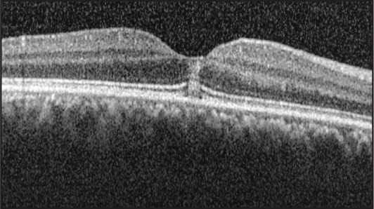 Spectral-domain optical coherence tomography shows full-thickness retinal hyperreflectivity at the foveal region.